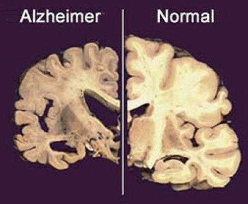 Výsledek obrázku pro alzheimer mozek